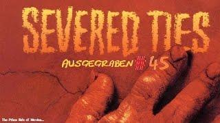Ausgegraben #45 - Severed Ties (The Thing - Gene außer Kontrolle)