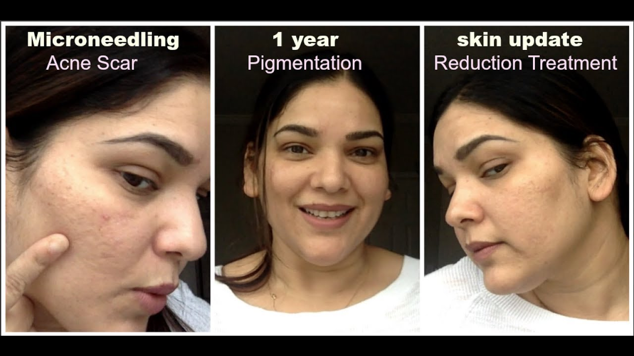 Microneedling 1 Year skin Update| Acne scar reduction, pigmentation, old  age wrinkles treatment