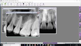Training: Apteryx XrayVision 4: Adding a Timestamp to Images