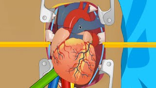 OPERATE NOW : HEART SURGERY | PLAY SURGERY GAMES