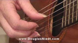Anchor Fingers Example 5 of 20