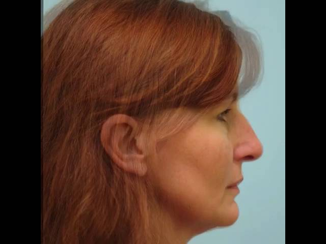Rhinoplasty Before and After Video Transformation
