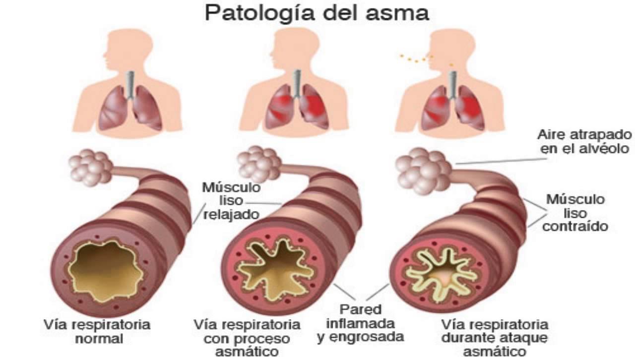 (las causas) y los tipos de asma
