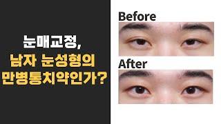 [모티브 성형외과] 눈매교정, 남자 눈성형의 만병통치약…