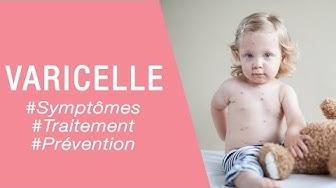 La varicelle chez l'enfant - Maladies infantiles