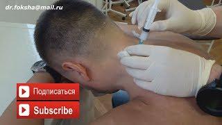 Лечение БОЛЬ В ШЕЕ | БЛОКАДА | Cervical Injections