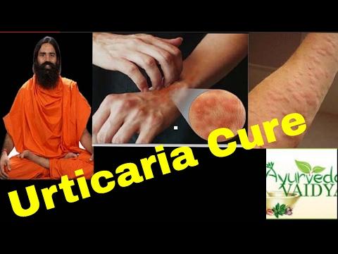 Urticaria Hives Cure-Baba Ramdev In Hindi