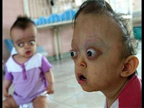 Hình ảnh Nạn Nhân Chất độc Màu Da Cam Dioxin Victims Youtube