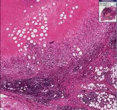 Histopathology Lymph node--Brucellosis