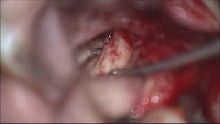 Otoskleroz ameliyatı (Lazer)