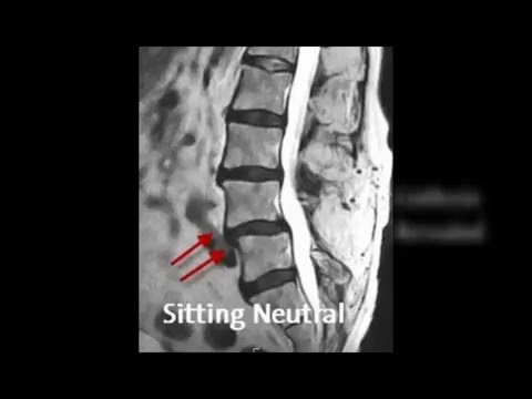 Case Modeling Lumbar Spinal Stenosis - Dynamic Disc Designs