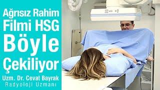 Ağrısız Rahim Filmi HSG böyle çekiliyor  Animasyonlu gerçek video.