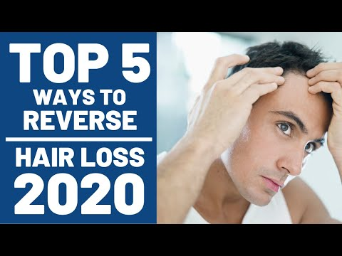 top-5-ways-to-reverse-hair-loss-in-2020