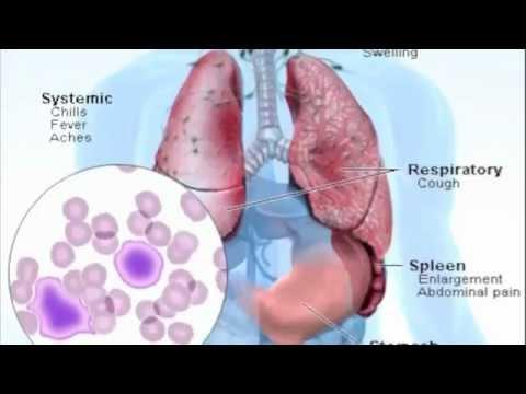 Mono Symptoms - What is Mononucleosis?