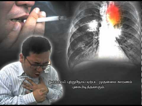 Late stage lung cancer