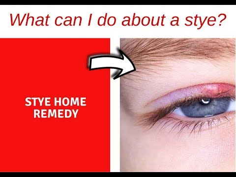 What Can I Do About A Stye Home Remedy For Stye Youtube