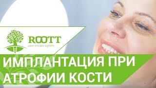 видео Наращивание костной ткани при имплантации зубов: цена, отзывы
