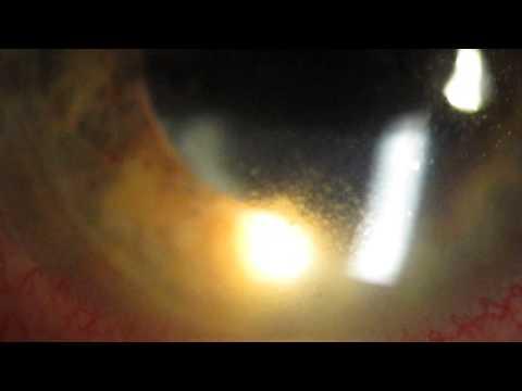Acute severe Recurrent anterior Uveitis/complicating Psoriatic arthritis