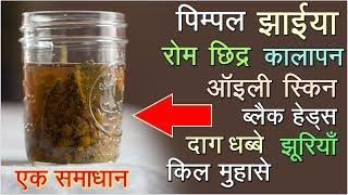 त्वचा से जुड़ी सारी समस्याओं का एक मात्र सबसे असरदार घरेलु इलाज Best drink for Skin & Immune System
