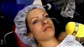 Pleasent general anesthesia