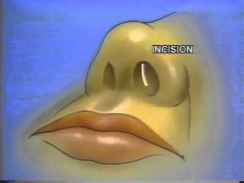 nasal septal reconstruction video from 1984