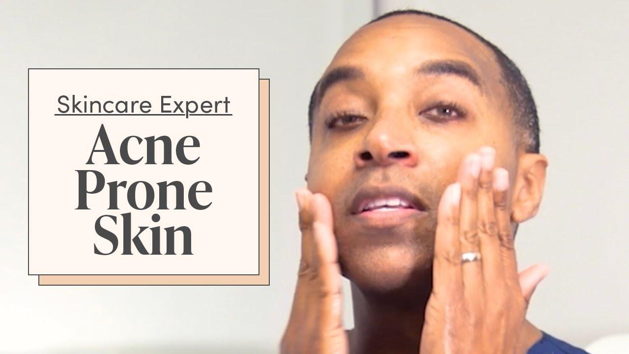 A Dermatologist's Morning Skincare Routine for Acne & Hyperpigmentation   Skincare Expert
