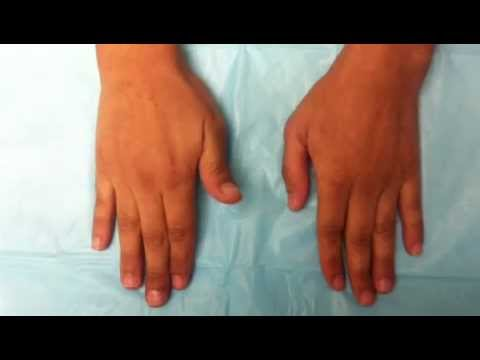 Tendon Rupture After Wrist Fracture Youtube