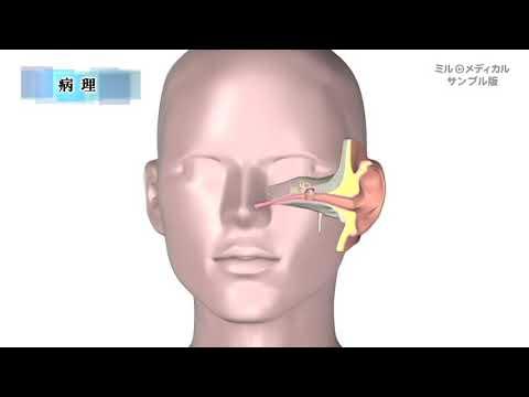 耳 管 開放 症 難病 指定