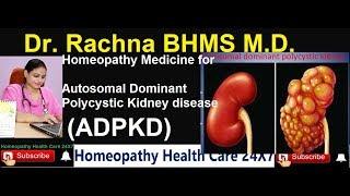 Homeopathy Medicine for Autosomal Dominant Polycystic Kidney Disease (ADPKD)पॉलिसिस्टिक किडनी डिसीज