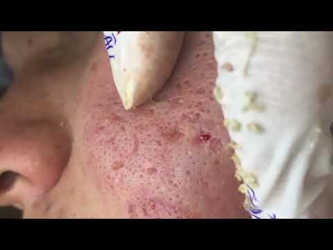 Acne Treatment Blackhead Extractions Popping #76