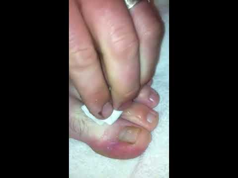 Bubbly Toes Popping a Massive Blister