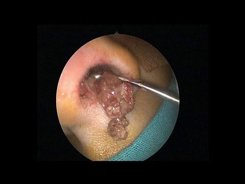 Полипы в носу: операция по удалению |