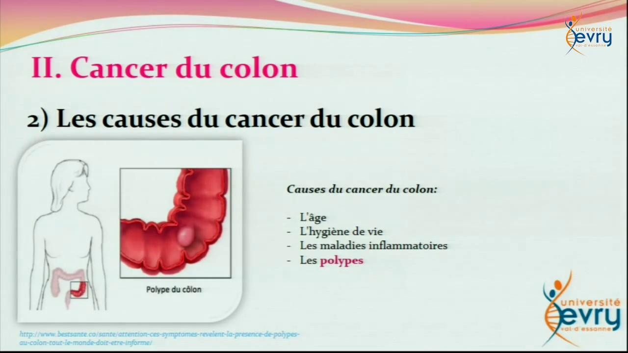 cancer colon viande)