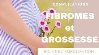 Fibromes utérins et Grossesse : Risques et Complications