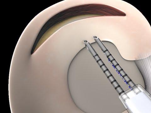 Cayenne Medical: CrossFix™ Knee Meniscus Surgery