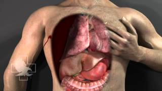 Hyfin Occlusive Chest Seal 3D video in HD