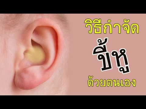 วิธีกำจัดขี้หูด้วยตนเอง ขี้หูอุดตัน ทำง่ายๆ สะอาดหมดจด