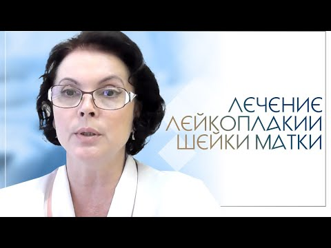 Лечение лейкоплакии шейки матки