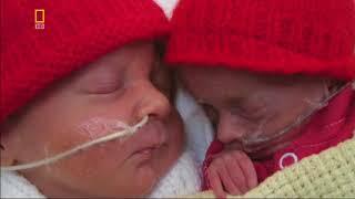 Жизнь до рождения: в утробе матери. Близнецы (National Geographic)