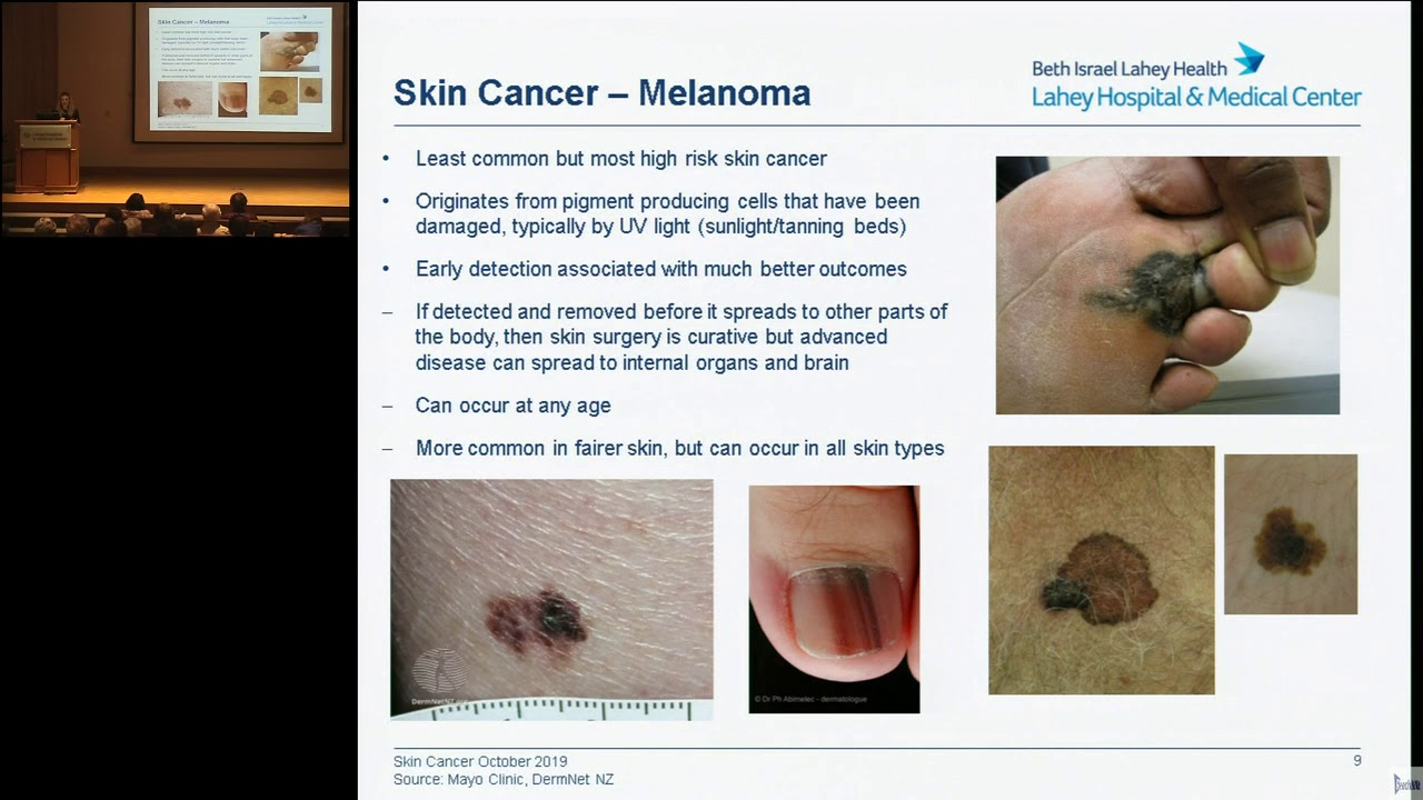 Skin Cancer Protection Detection And Treatment Youtube