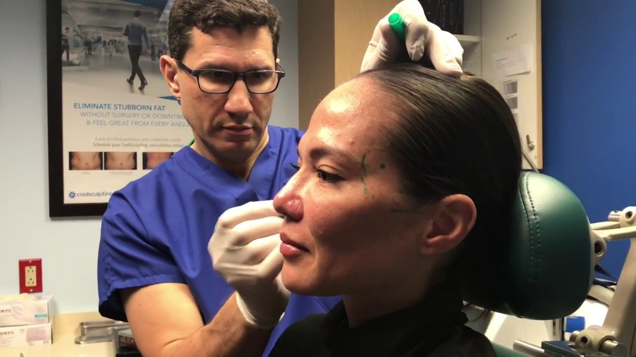 Adding Facial Volume with Dermal Fillers for NYC Patient