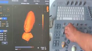 How to Use 4D Ultrasound, Training Video by Chison