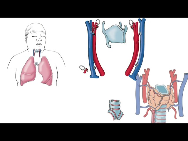Dr. Eric Genden Discusses the First Donor Tracheal Transplant Procedure