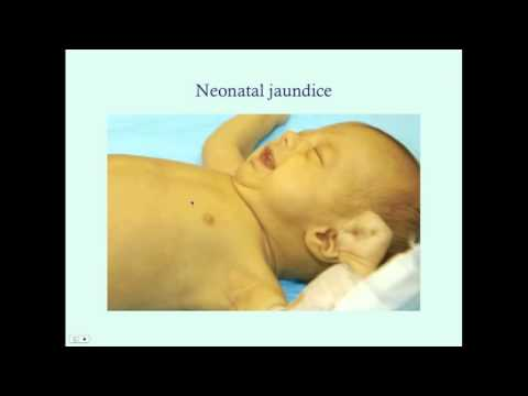 Introduction To Newborn Jaundice - CRASH! Medical Review Series