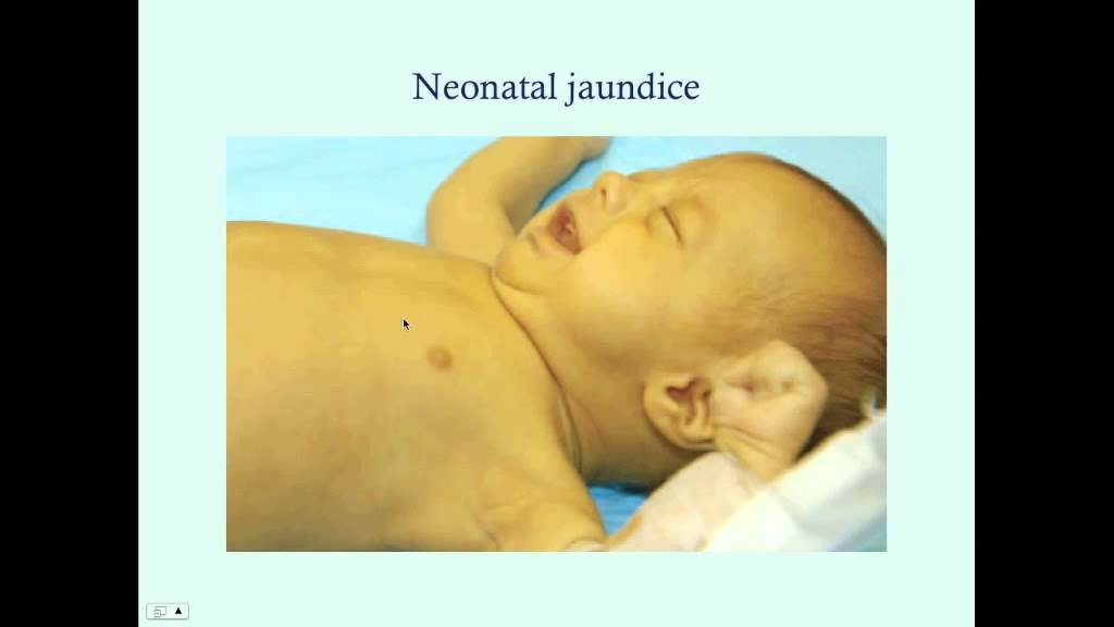 Introduction to Newborn Jaundice - CRASH! Medical Review ...