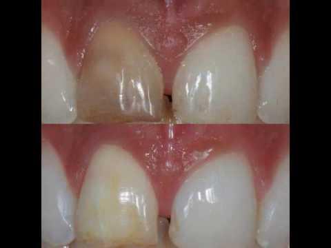 Blanchiment des dents devitalisees