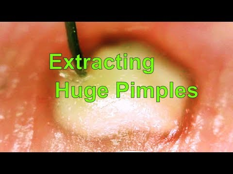 Extracting  Huge Pimples compilation: Can you watch to the end?
