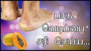 Heel Crack Treatment In Tamil | Tamil Beauty Tips