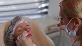 Контурная пластика губ в клинике медицинской косметологии & SPA