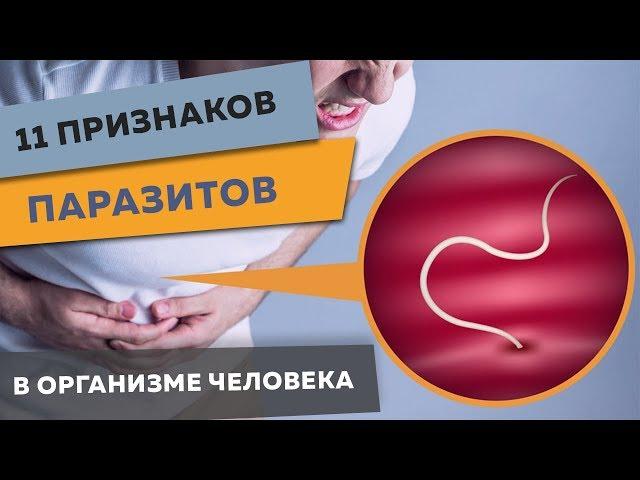 11 признаков паразитов в организме человека! ПРОСТОЙ ТЕСТ.  Что делать, чтобы их вывести?
